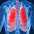 В Каменском стартовал месячник борьбы с туберкулезом