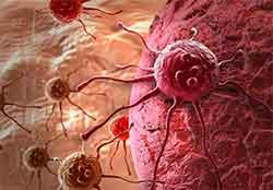 3 распространенных видов рака у женщин Днепродзержинск